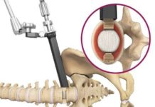 Spineology Duo Angled Instrumentation System